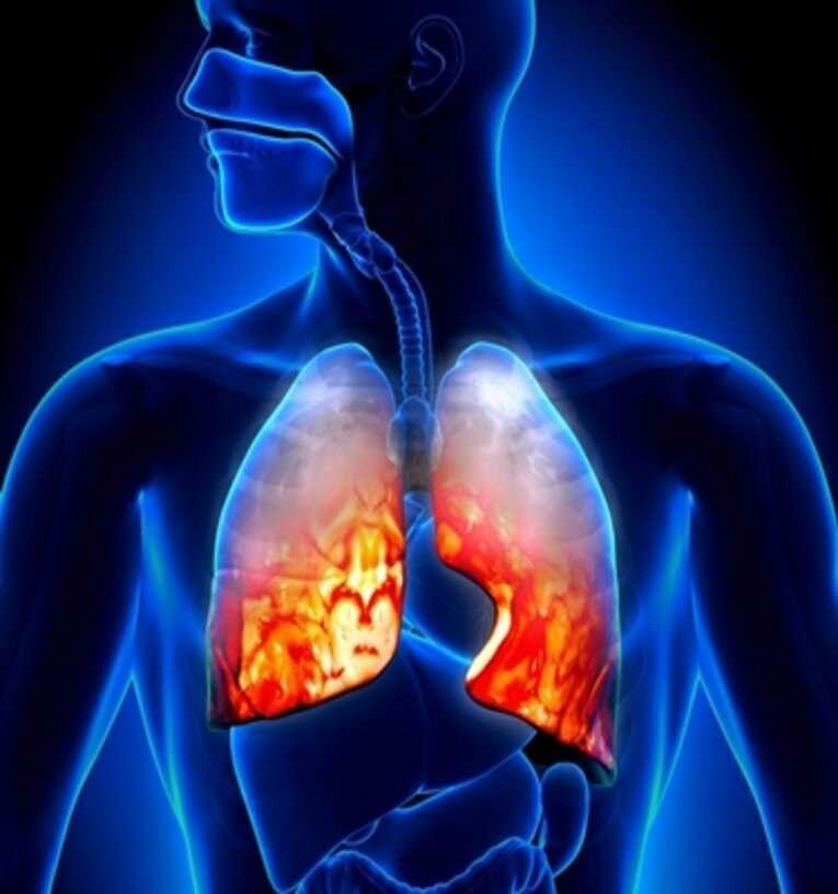 Analgesici ed antinfiammatori